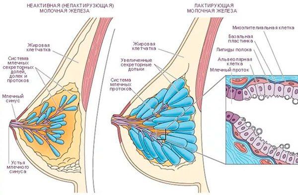 когда нужно удаление доброкачественной опухоли груди