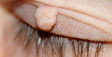 виды доброкачественных опухолей на коже