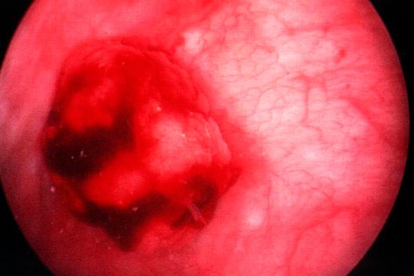 фото мочевого пузыря у женщин