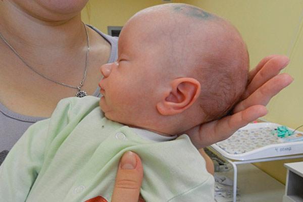 киста в головном мозге у новорожденных