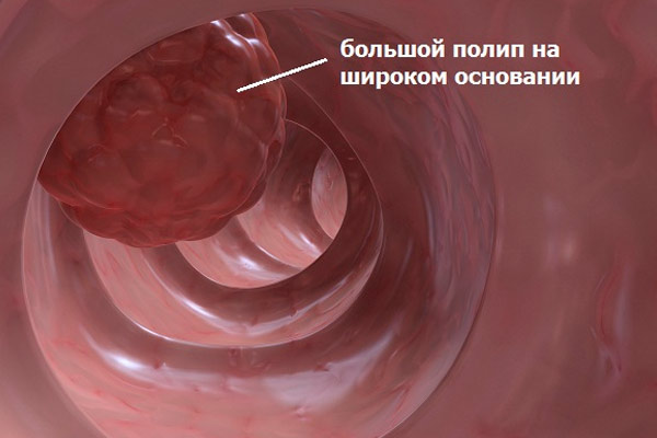 большой полип толстого кишечника