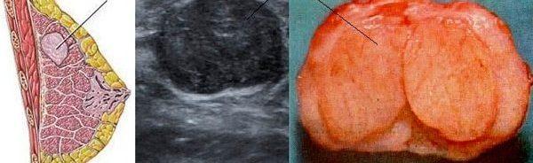 как лечить фиброму груди