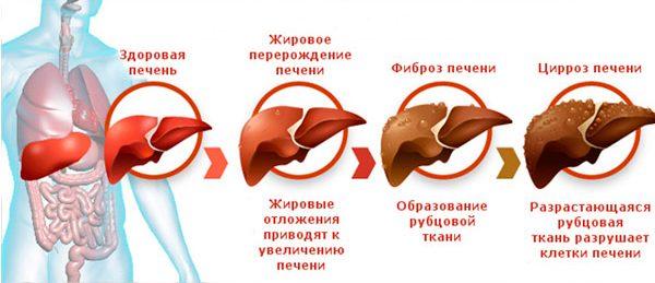 Лекарства для очищения печени от токсинов