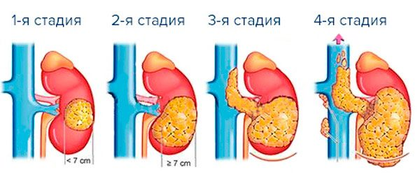 стадии рака желудка