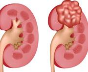 лечение фибромы груди