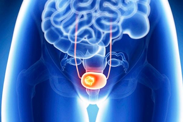 проявления рака мочевого пузыря