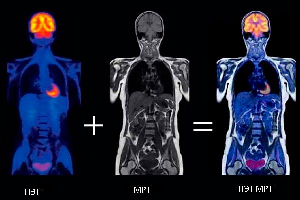 ПЭТ и МРТ позволяют получить полную картину