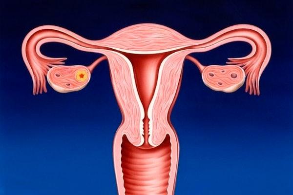 как определить рак шейки матки с помощью осмотра