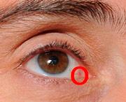 опухоль в области глаза