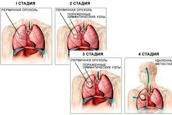 опухоль верхнедолевого бронха