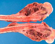 симптомы опухоли в костях