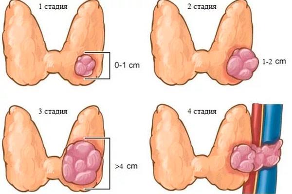 виды и стадии опухолей