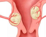 можно вылечить рак шейки матки в больнице