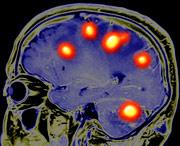 виды злокачественных опухолей