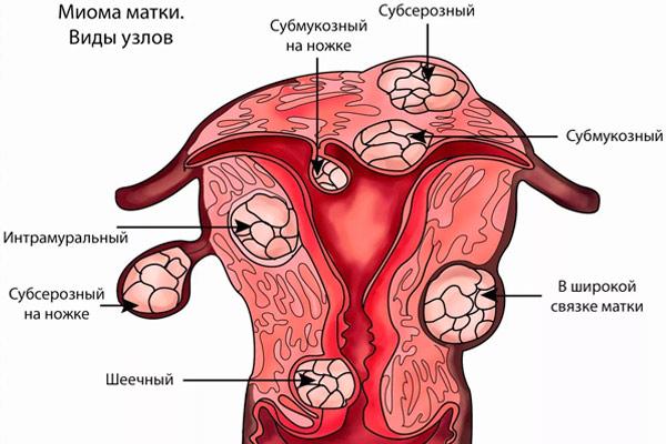 Разрешен ли оральный секс операции лейомиомы