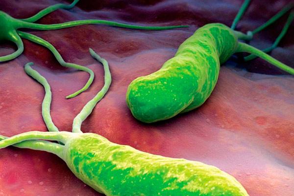 классификация бактерий Helicobacter pylori