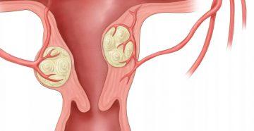 в каком месте растет интрамуральная миома матки