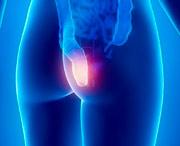 признаки опухоли кишечника