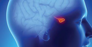 аденома гипофиза головного мозга больших размеров давит