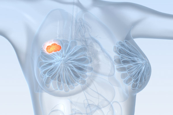 оперативное лечение опухоли