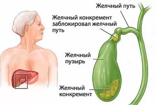 проявление первых симптомов