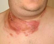 как выглядит лимфома