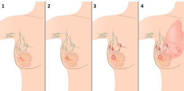 первые признаки рака молочной железы у пожилых женщин