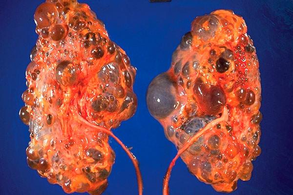 как выглядит рак почки