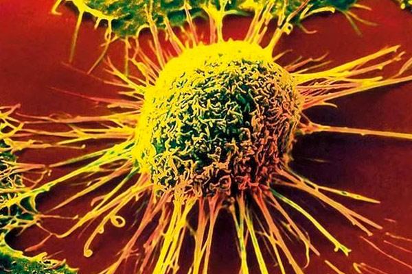 фото раковой клетки