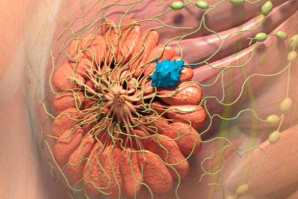 фото дольковой опухоли
