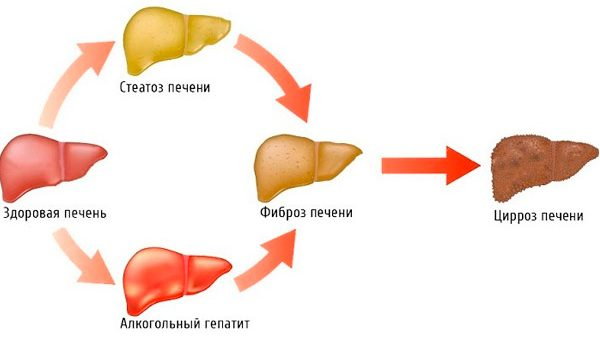 лучшее лекарство от цирроза
