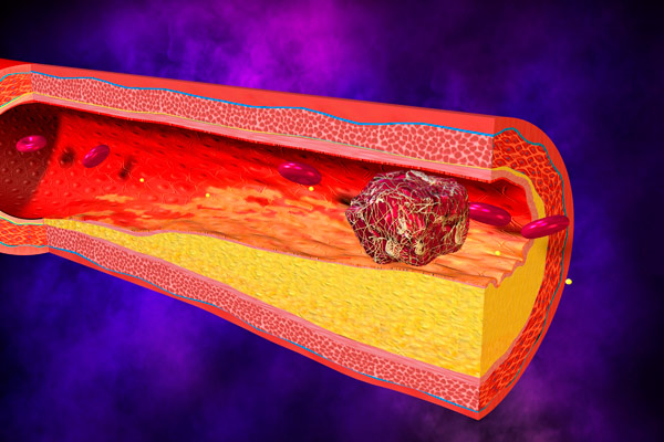 что такое портальный тромбоз
