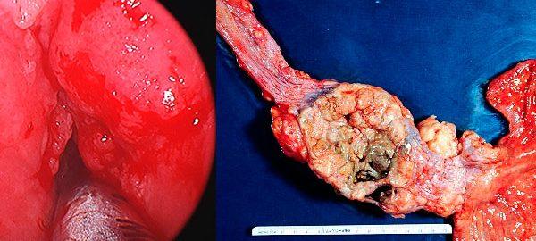как выглядит вырезанная часть гортани