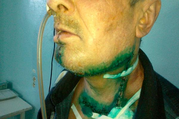 злокачественная опухоль слизистой оболочки полости рта подлежит удалению