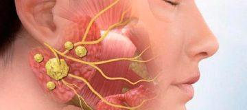 аденома слюнной железы встречается нескольких видов