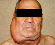 лимфома небной миндалины у взрослых