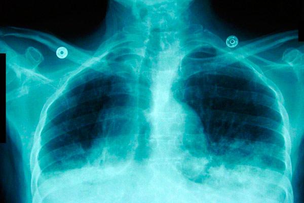 карцинома легких на снимке