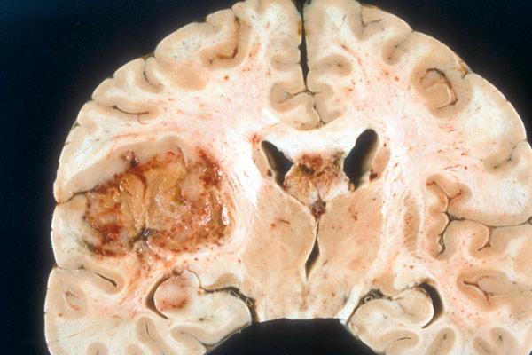 рак правого легкого с осложнениями