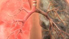 каким видам лечения поддается 3 стадия рака легких