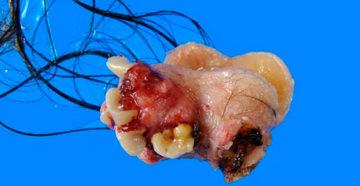 опасные и необычные доброкачественные опухоли яичников
