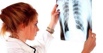 из-за чего образуется карцинома легких