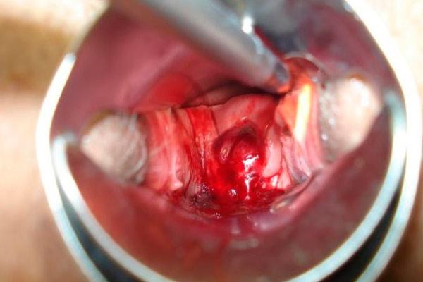 начинаются маточные кровотечения