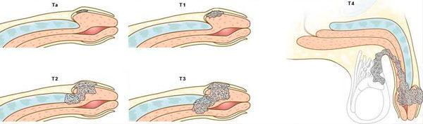 фото стадий рака головки
