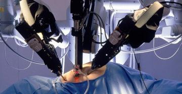 оперативное лечение рака простаты
