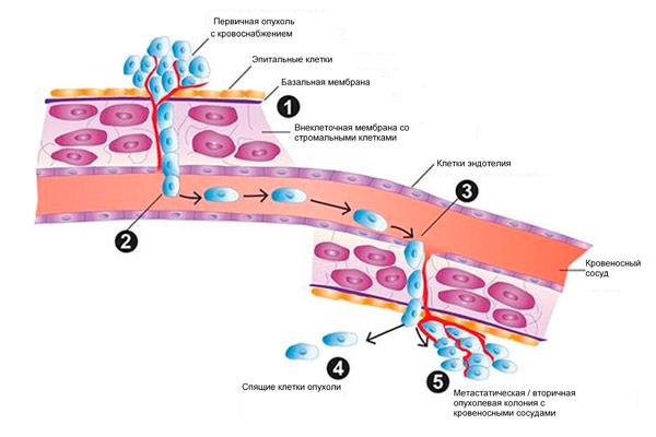 рак легких с метастазами