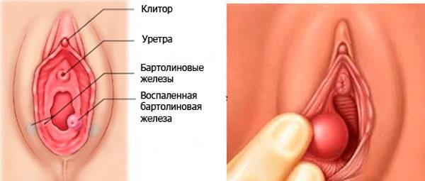 как проявляется рак бартолиновой железы первой степени
