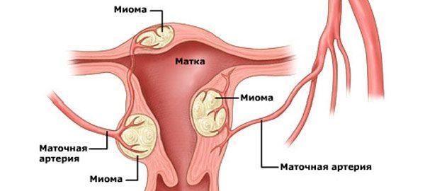 Миома матки - симптомы и признаки. Что это такое и как лечить у женщин