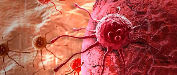 распространение метастазов в лимфоузлы