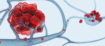метастазы в позвоночник при раке легких