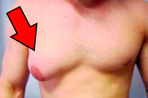 фото опухоли у мужчины